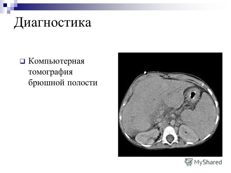 Диагностика Компьютерная томография брюшной полости
