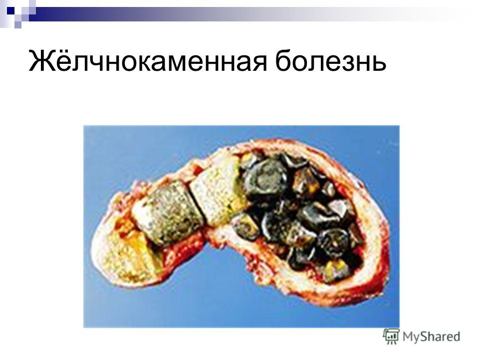 Жёлчнокаменная болезнь