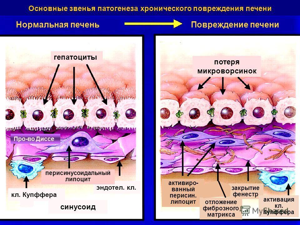 Нормальная печеньПовреждение печени гепатоциты потеря микроворсинок кл. Купффера синусоид эндотел. кл. перисинусоидальный липоцит активиро- ванный перисин. липоцит отложение фиброзного матрикса закрытие фенестр активация кл. Купффера Основные звенья