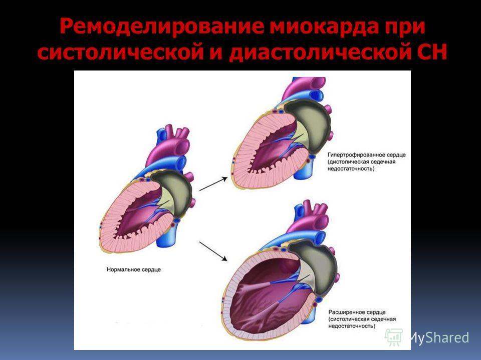 Ремоделирование миокарда при систолической и диастолической СН