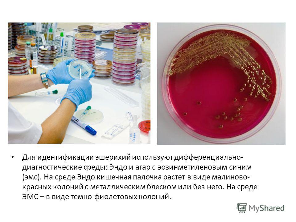 Для идентификации эшерихий используют дифференциально- диагностические среды: Эндо и агар с эозинметиленовым синим (эмс). На среде Эндо кишечная палочка растет в виде малиново- красных колоний с металлическим блеском или без него. На среде ЭМС – в ви
