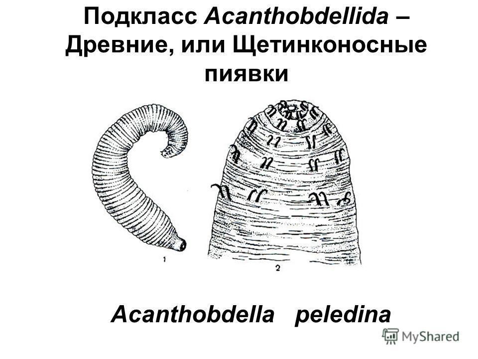 Подкласс Acanthobdellida – Древние, или Щетинконосные пиявки Acanthobdella peledina