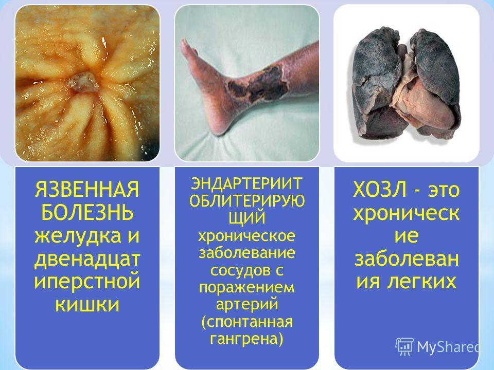 ЯЗВЕННАЯ БОЛЕЗНЬ желудка и двенадцат иперстной кишки ЭНДАРТЕРИИТ ОБЛИТЕРИРУЮ ЩИЙ хроническое заболевание сосудов с поражением артерий (спонтанная гангрена) ХОЗЛ - это хроническ ие заболеван ия легких