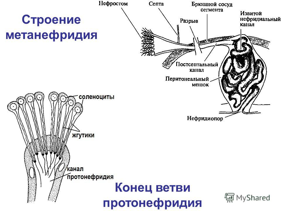 Строение метанефридия Конец ветви протонефридия