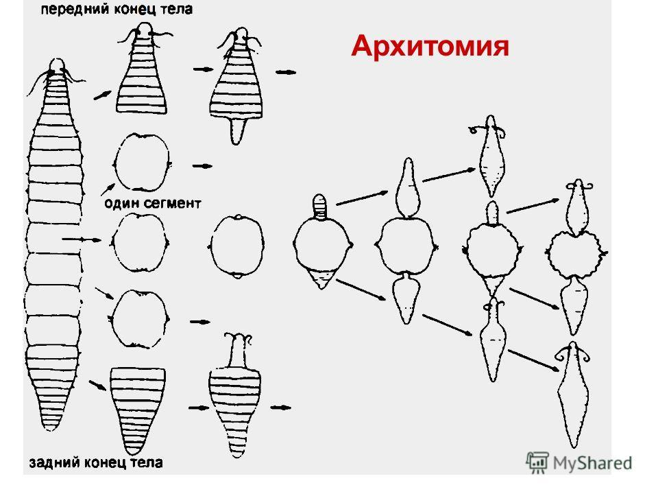 Архитомия