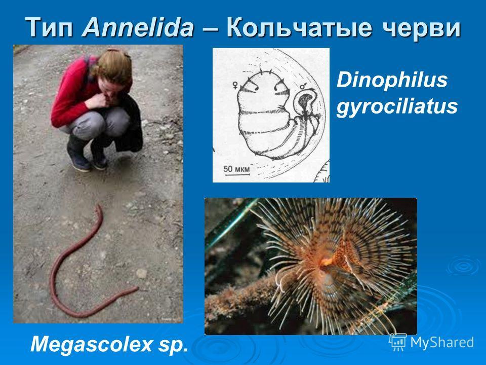 Тип Annelida – Кольчатые черви Megascolex sp. Dinophilus gyrociliatus