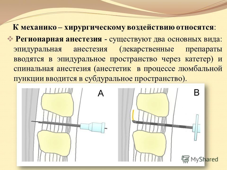 К механико – хирургическому воздействию относятся: Регионарная анестезия - существуют два основных вида: эпидуральная анестезия (лекарственные препараты вводятся в эпидуральное пространство через катетер) и спинальная анестезия (анестетик в процессе