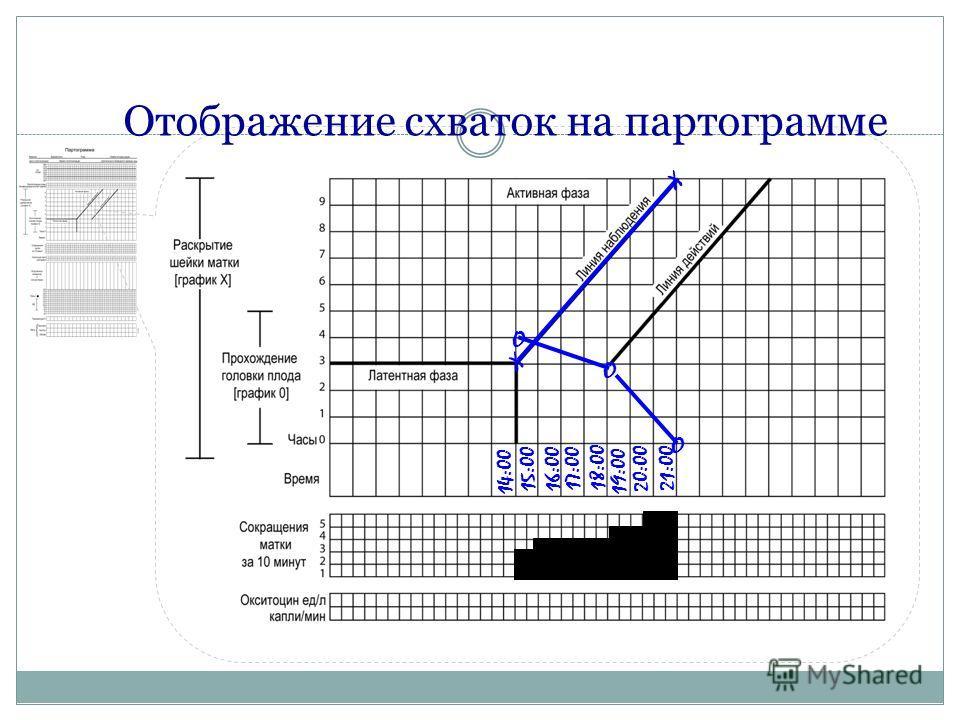 Отображение схваток на партограмме 14:00 15:00 16:00 17:00 18:00 19:00 20:00 21:00 O O O X X