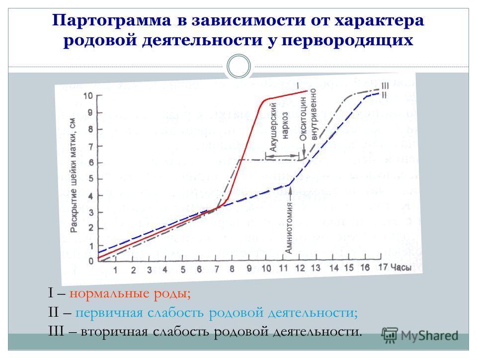 Партограмма в зависимости от характера родовой деятельности у первородящих I – нормальные роды; II – первичная слабость родовой деятельности; III – вторичная слабость родовой деятельности.