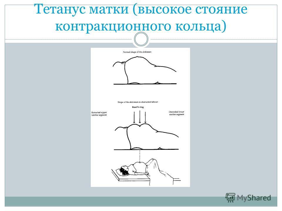 Тетанус матки (высокое стояние контракционного кольца)
