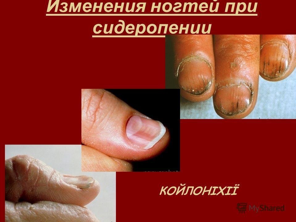Изменения ногтей при сидеропении КОЙЛОНІХІЇ