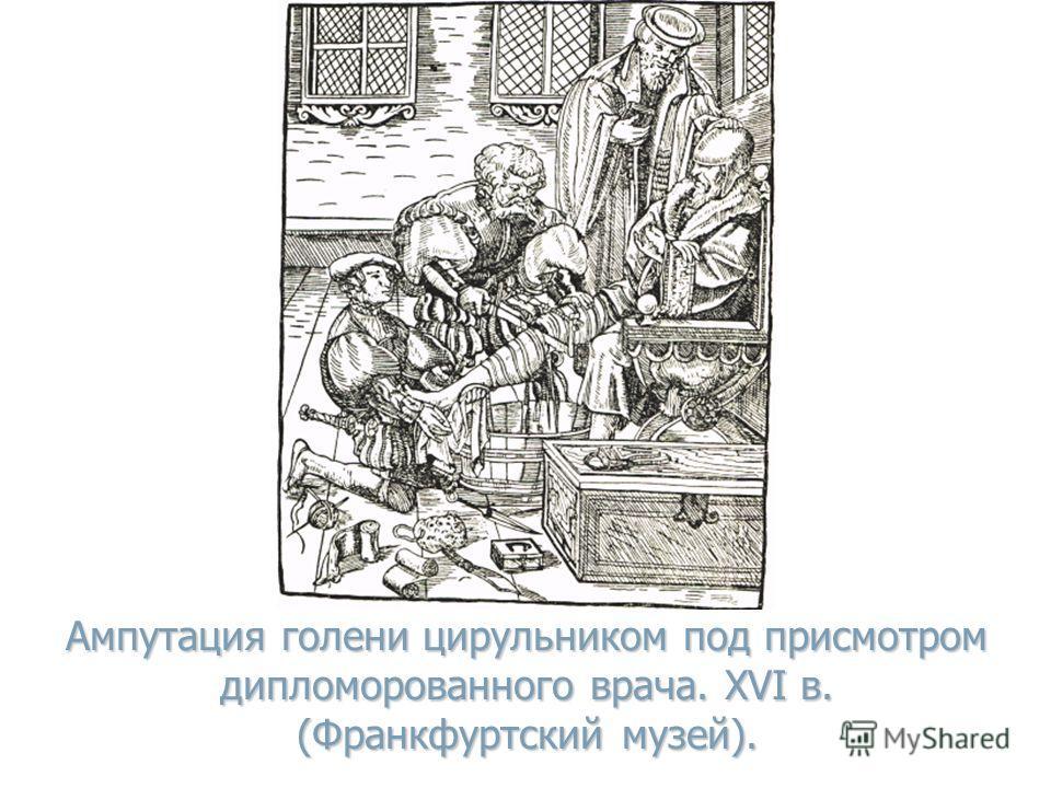 Ампутация голени цирульником под присмотром дипломорованного врача. XVI в. (Франкфуртский музей).