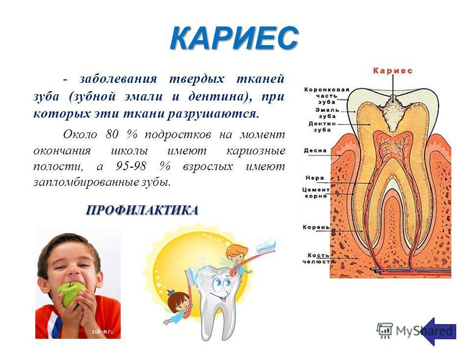 КАРИЕС - заболевания твердых тканей зуба (зубной эмали и дентина), при которых эти ткани разрушаются. Около 80 % подростков на момент окончания школы имеют кариозные полости, а 95-98 % взрослых имеют запломбированные зубы. ПРОФИЛАКТИКА
