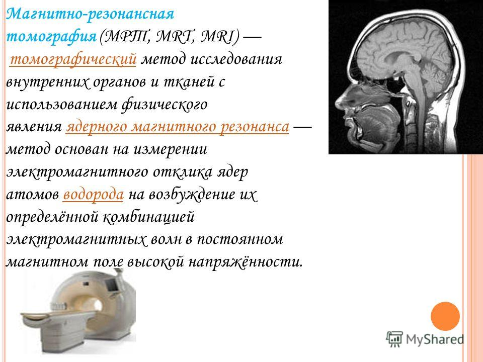 Магнитно-резонансная томография (МРТ, MRT, MRI) томографический метод исследования внутренних органов и тканей с использованием физического явления ядерного магнитного резонанса метод основан на измерении электромагнитного отклика ядер атомов водород