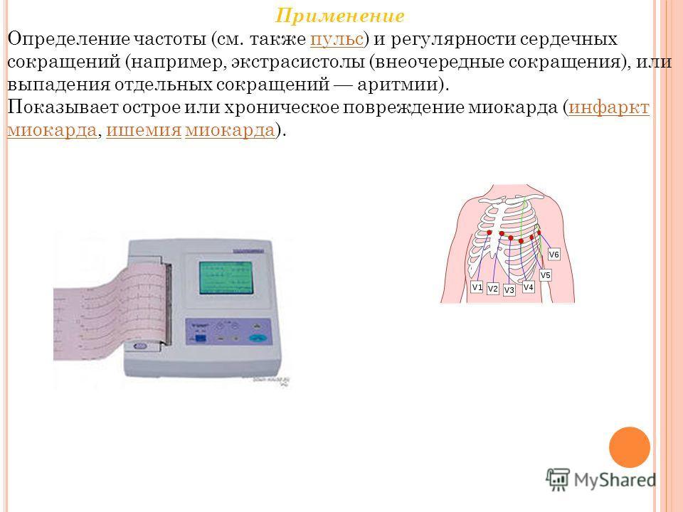Применение Определение частоты (см. также пульс) и регулярности сердечных сокращений (например, экстрасистолы (внеочередные сокращения), или выпадения отдельных сокращений аритмии).пульс Показывает острое или хроническое повреждение миокарда (инфаркт