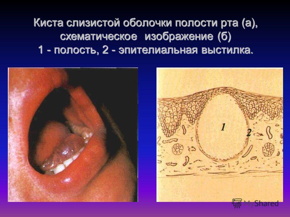 Киста слизистой оболочки полости рта (а), схематическое изображение (б) 1 - полость, 2 - эпителиальная выстилка.