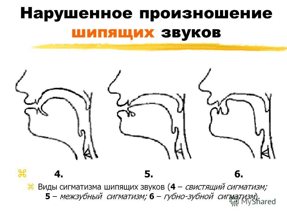 Нарушенное произношение шипящих звуков z 4. 5. 6. z Виды сигматизма шипящих звуков (4 – свистящий сигматизм; 5 – межзубный сигматизм; 6 – губно-зубной сигматизм).