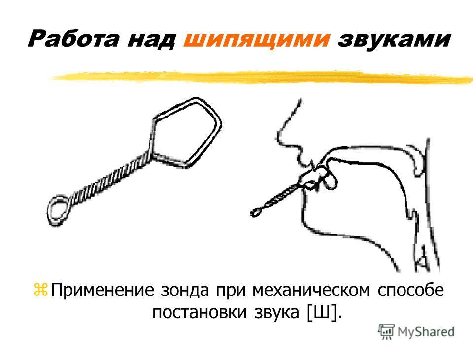 zПрименение зонда при механическом способе постановки звука [Ш].
