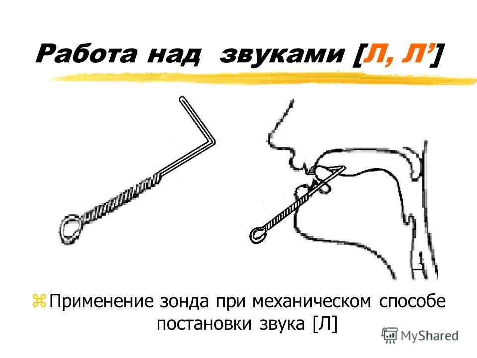 zПрименение зонда при механическом способе постановки звука [Л]