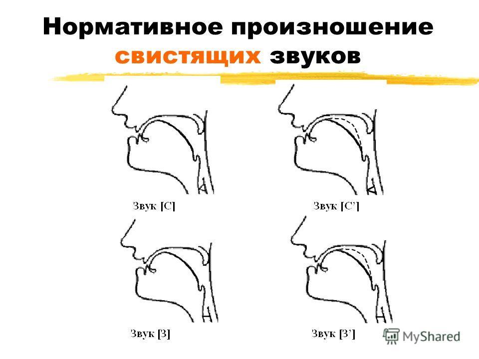 Нормативное произношение свистящих звуков