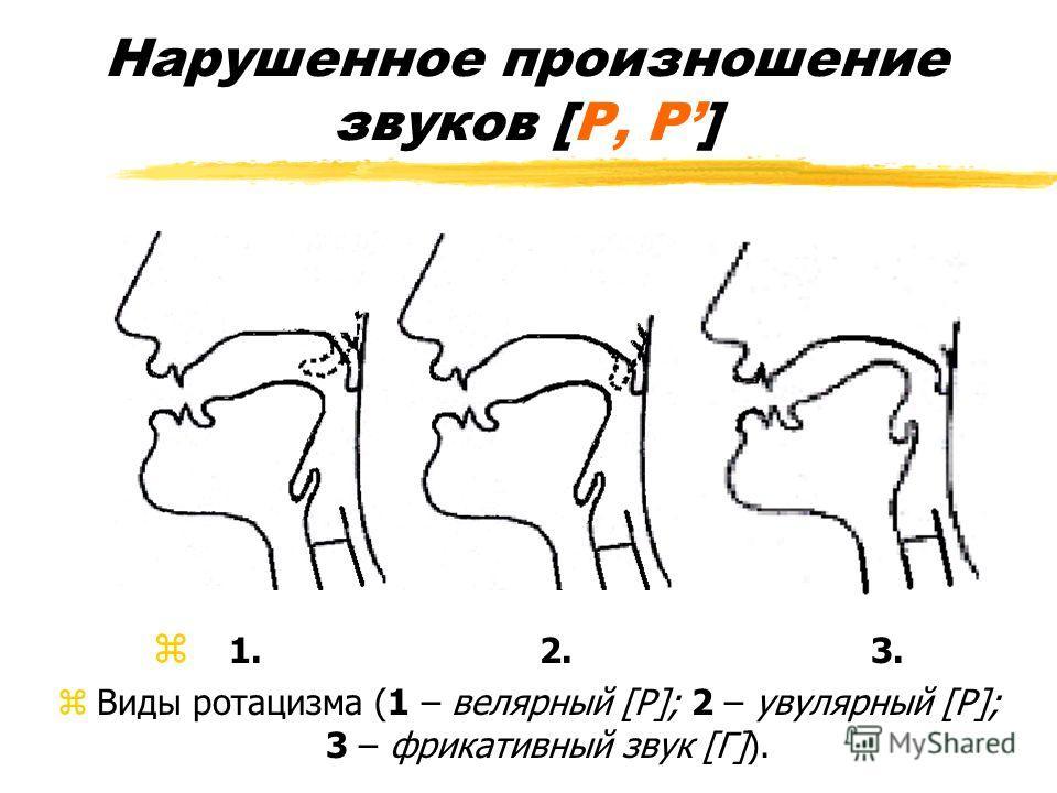 Нарушенное произношение звуков [Р, Р] z 1. 2. 3. zВиды ротацизма (1 – велярный [Р]; 2 – увулярный [Р]; 3 – фрикативный звук [Г]).