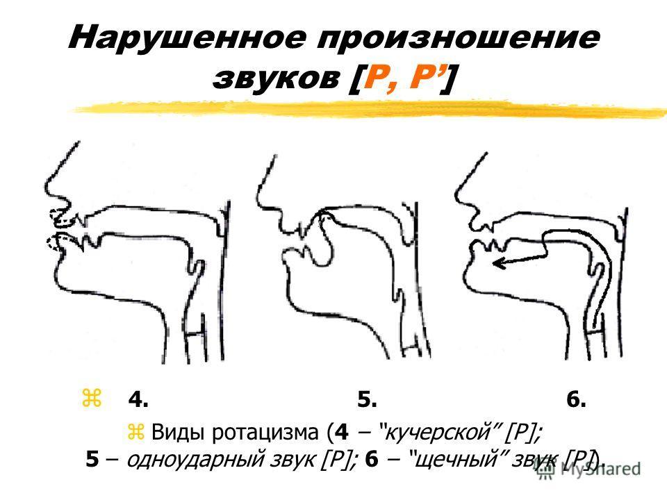 Нарушенное произношение звуков [Р, Р] z 4. 5. 6. zВиды ротацизма (4 – кучерской [Р]; 5 – одноударный звук [Р]; 6 – щечный звук [Р]).