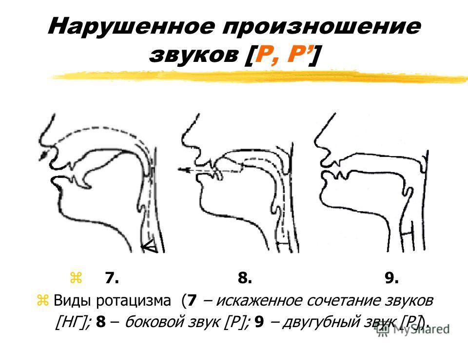 Нарушенное произношение звуков [Р, Р] z 7. 8. 9. zВиды ротацизма (7 – искаженное сочетание звуков [НГ]; 8 – боковой звук [Р]; 9 – двугубный звук [Р]).