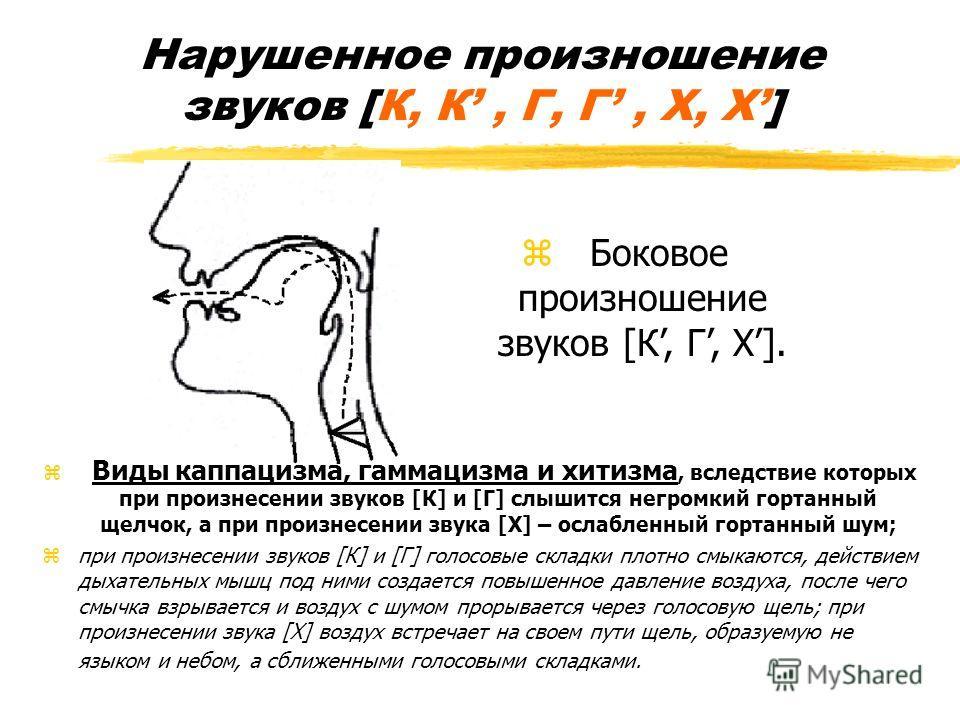 Нарушенное произношение звуков [К, К, Г, Г, Х, Х] z Виды каппацизма, гаммацизма и хитизма, вследствие которых при произнесении звуков [К] и [Г] слышится негромкий гортанный щелчок, а при произнесении звука [Х] – ослабленный гортанный шум; zпри произн