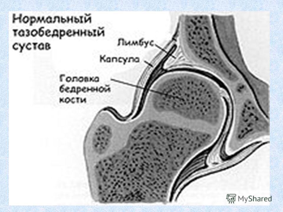 Анатомические особенности тазобедренного сустава при дисплазии