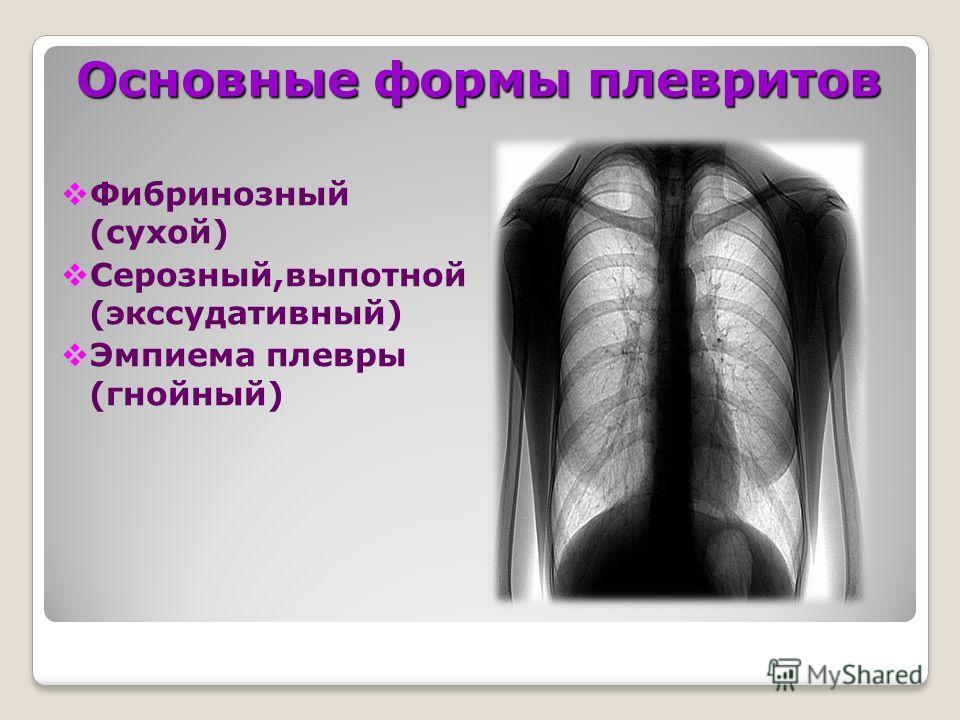 Основные формы плевритов Фибринозный (сухой) Серозный,выпотной (экссудативный) Эмпиема плевры (гнойный)