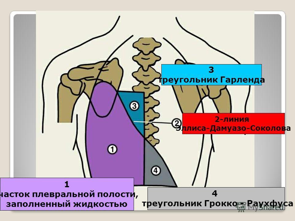 1 участок плевральной полости, заполненный жидкостью 2-линия Эллиса-Дамуазо-Соколова 3 треугольник Гарленда 4 треугольник Грокко - Раухфуса