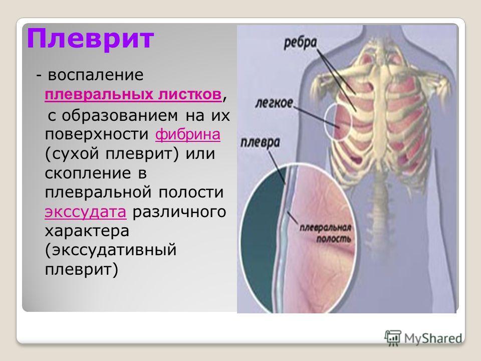 Плеврит - воспаление плевральных листков, с образованием на их поверхности фибрина (сухой плеврит) или скопление в плевральной полости экссудата различного характера (экссудативный плеврит)