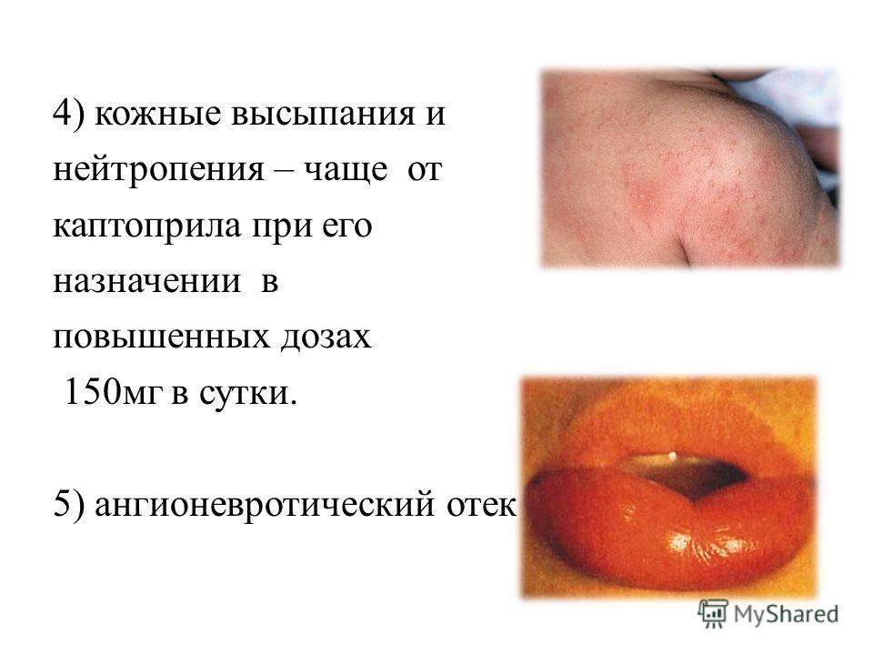 нижних конечностей, гипотензия, сонливость. 4) кожные высыпания и нейтропения – чаще от каптоприла при его назначении в повышенных дозах 150мг в сутки. 5) ангионевротический отек –