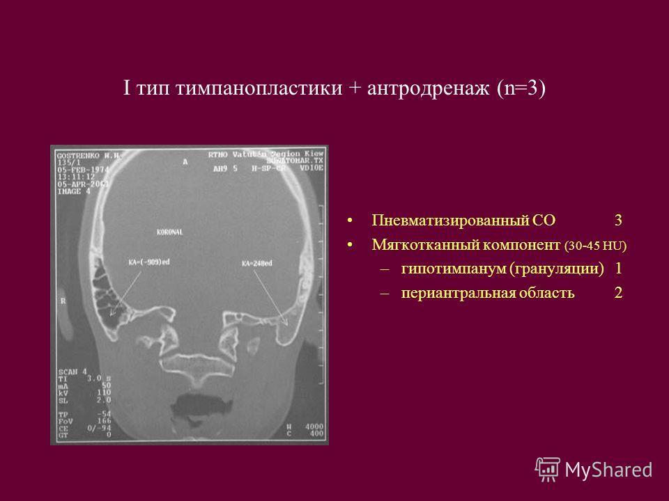 I тип тимпанопластики + антродренаж (n=3) Пневматизированный СО3 Мягкотканный компонент (30-45 HU) –гипотимпанум (грануляции)1 –периантральная область2