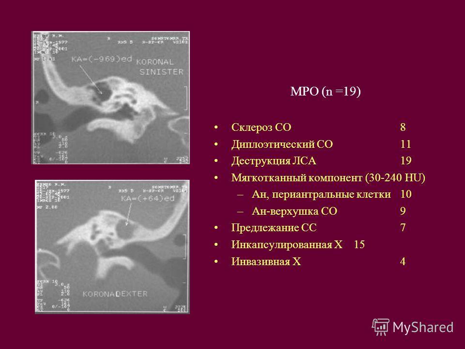 МРО (n =19) Cклероз СО8 Диплоэтический СО11 Деструкция ЛСА19 Мягкотканный компонент (30-240 HU) –Ан, периантральные клетки10 –Ан-верхушка СО9 Предлежание СС7 Инкапсулированная Х15 Инвазивная Х4