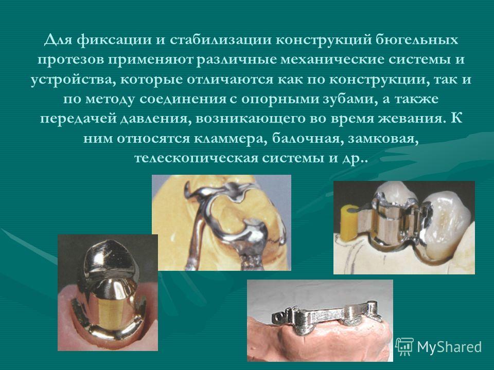 Для фиксации и стабилизации конструкций бюгельных протезов применяют различные механические системы и устройства, которые отличаются как по конструкции, так и по методу соединения с опорными зубами, а также передачей давления, возникающего во время ж