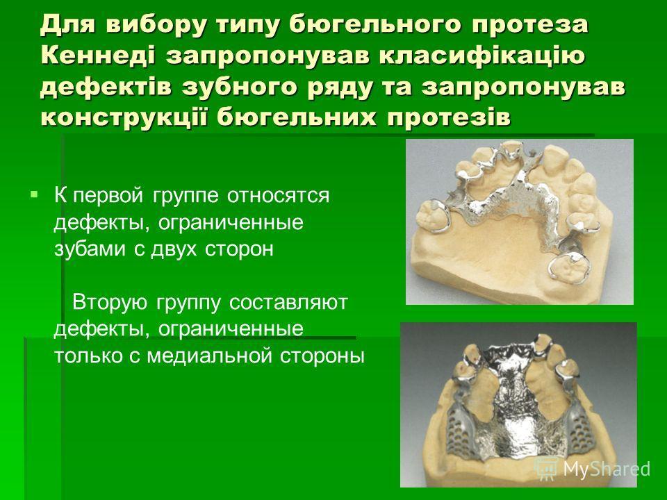 Для вибору типу бюгельного протеза Кеннеді запропонував класифікацію дефектів зубного ряду та запропонував конструкції бюгельних протезів К первой группе относятся дефекты, ограниченные зубами с двух сторон Вторую группу составляют дефекты, ограничен