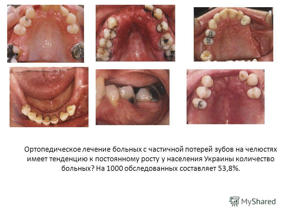 Ортопедическое лечение больных с частичной потерей зубов на челюстях имеет тенденцию к постоянному росту у населения Украины количество больных? На 1000 обследованных составляет 53,8%.