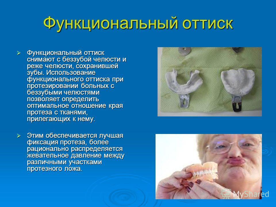 Функциональный оттиск Функциональный оттиск снимают с беззубой челюсти и реже челюсти, сохранившей зубы. Использование функционального оттиска при протезировании больных с беззубыми челюстями позволяет определить оптимальное отношение края протеза с