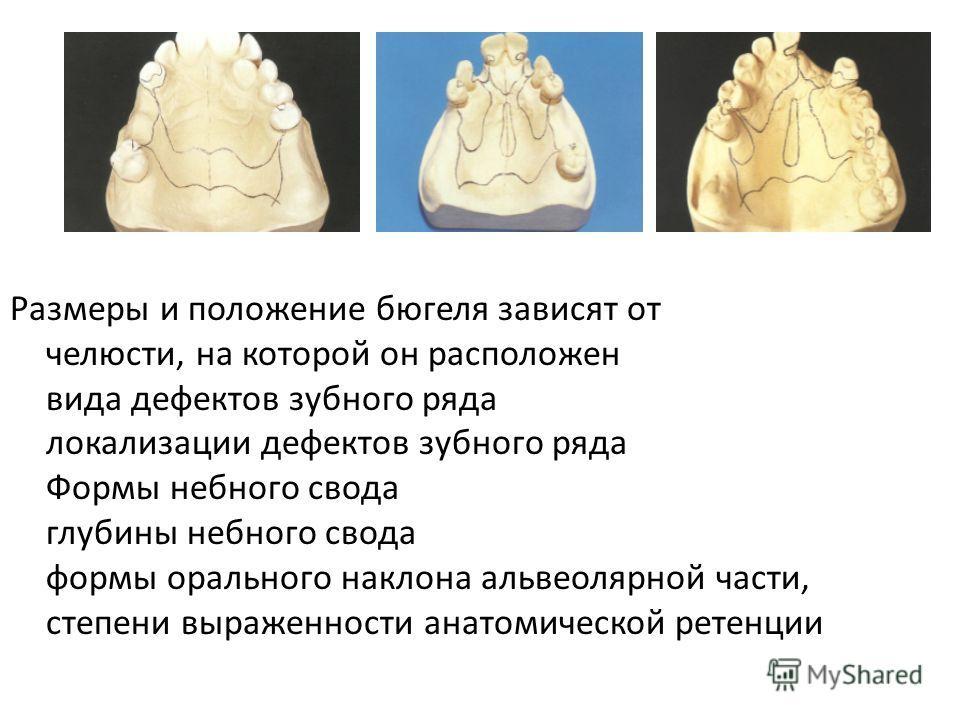 Размеры и положение бюгеля зависят от челюсти, на которой он расположен вида дефектов зубного ряда локализации дефектов зубного ряда Формы небного свода глубины небного свода формы орального наклона альвеолярной части, степени выраженности анатомичес