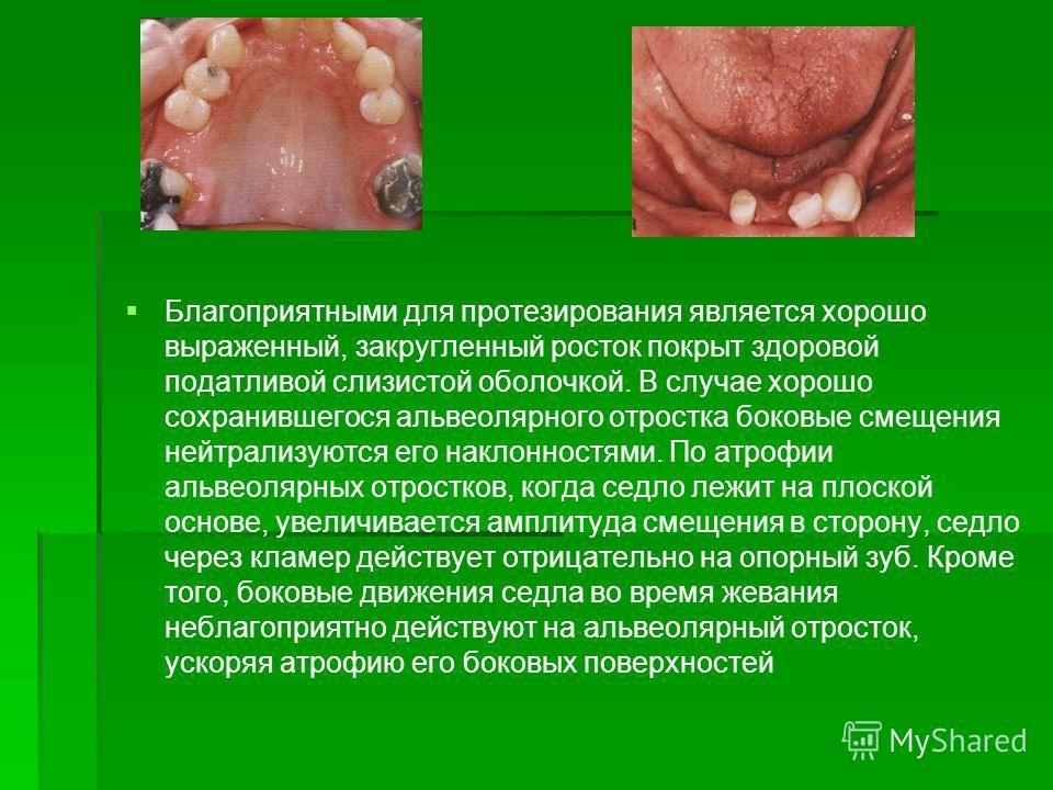 Благоприятными для протезирования является хорошо выраженный, закругленный росток покрыт здоровой податливой слизистой оболочкой. В случае хорошо сохранившегося альвеолярного отростка боковые смещения нейтрализуются его наклонностями. По атрофии альв