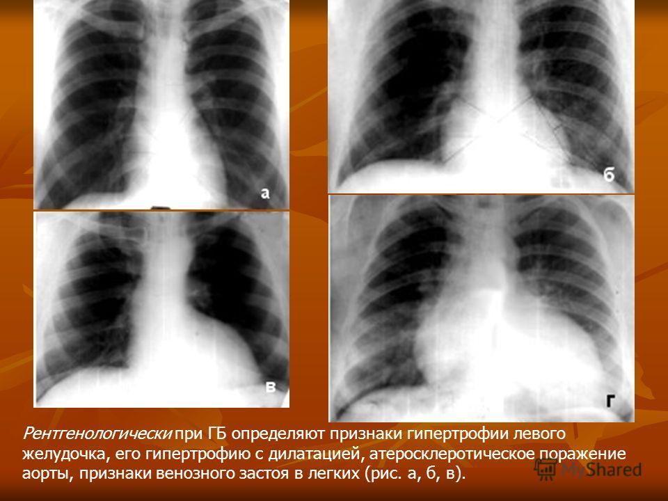 Рентгенологически при ГБ определяют признаки гипертрофии левого желудочка, его гипертрофию с дилатацией, атеросклеротическое поражение аорты, признаки венозного застоя в легких (рис. а, б, в).