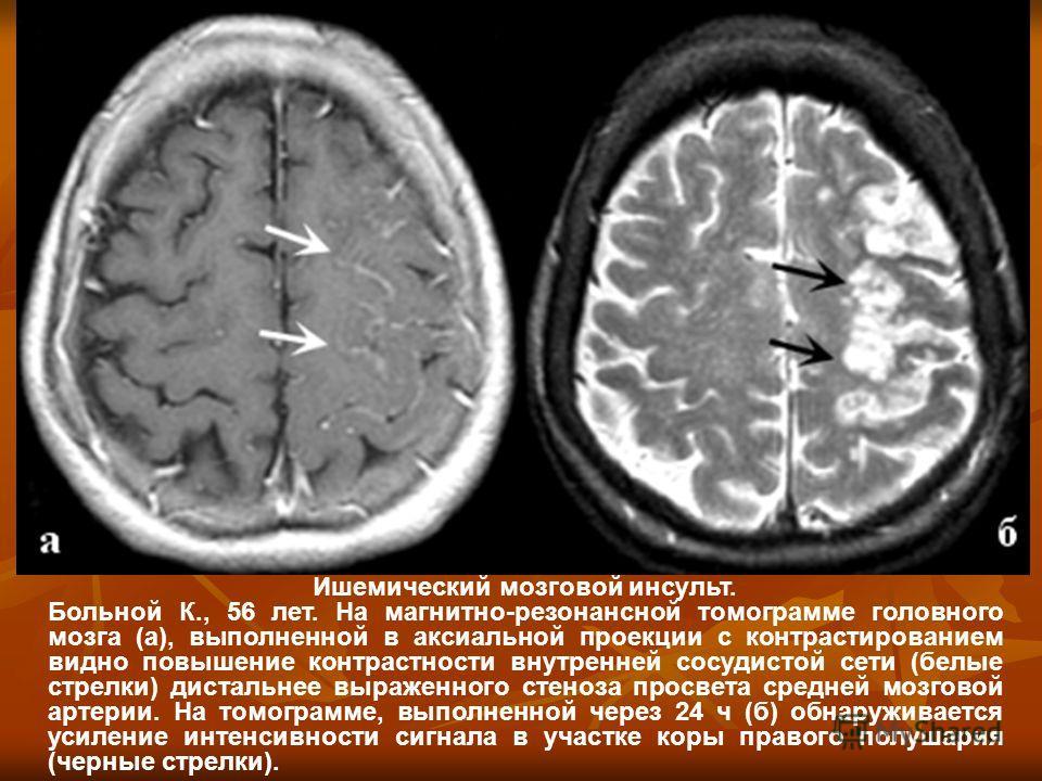 Ишемический мозговой инсульт. Больной К., 56 лет. На магнитно-резонансной томограмме головного мозга (а), выполненной в аксиальной проекции с контрастированием видно повышение контрастности внутренней сосудистой сети (белые стрелки) дистальнее выраже
