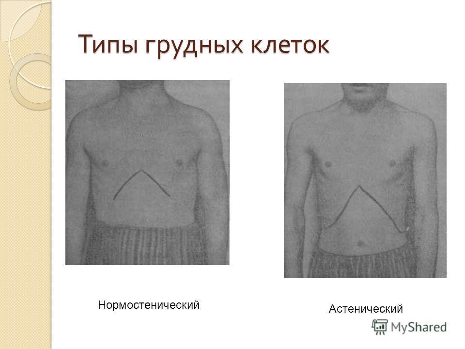 Типы грудных клеток Нормостенический Астенический