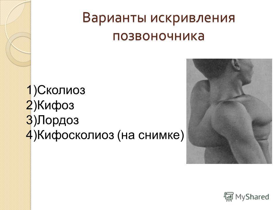 Варианты искривления позвоночника 1)Сколиоз 2)Кифоз 3)Лордоз 4)Кифосколиоз (на снимке)