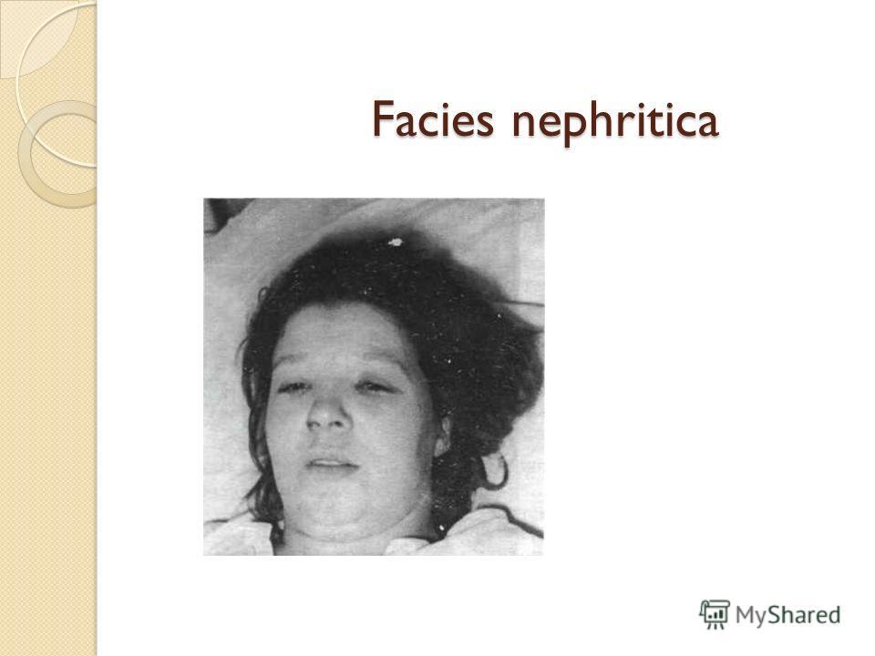 Facies nephritica