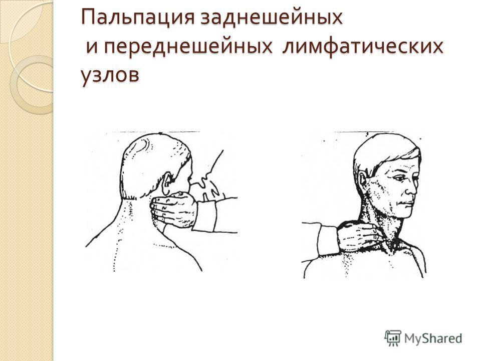 Пальпация заднешейных и переднешейных лимфатических узлов
