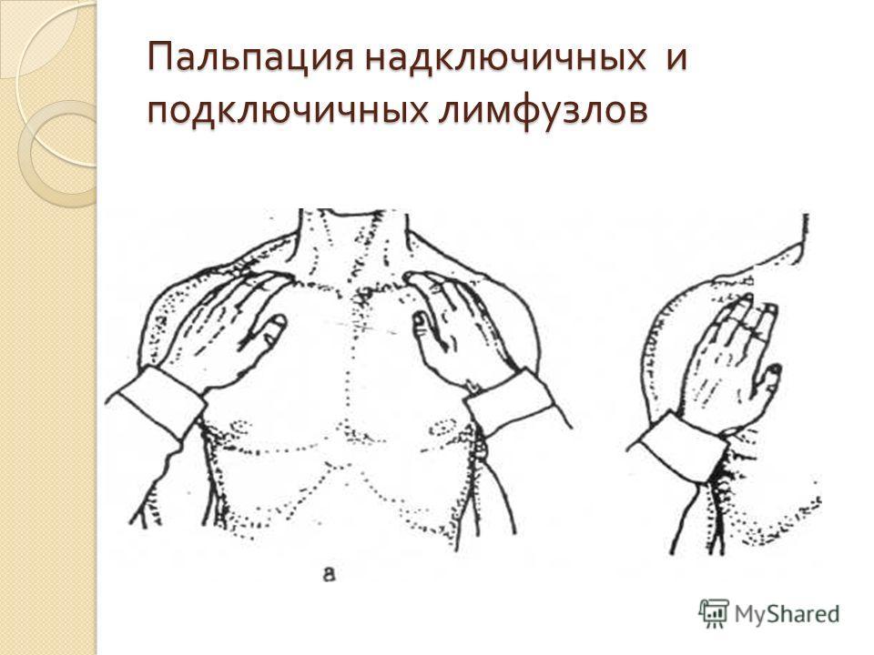 Пальпация надключичных и подключичных лимфузлов