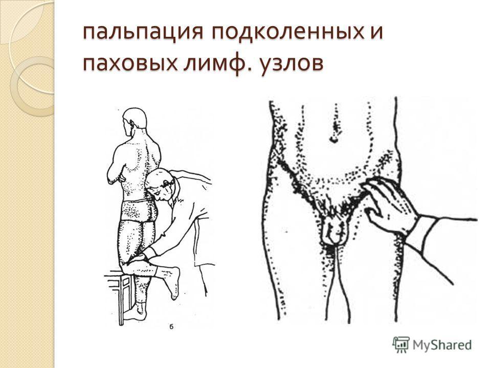 пальпация подколенных и паховых лимф. узлов