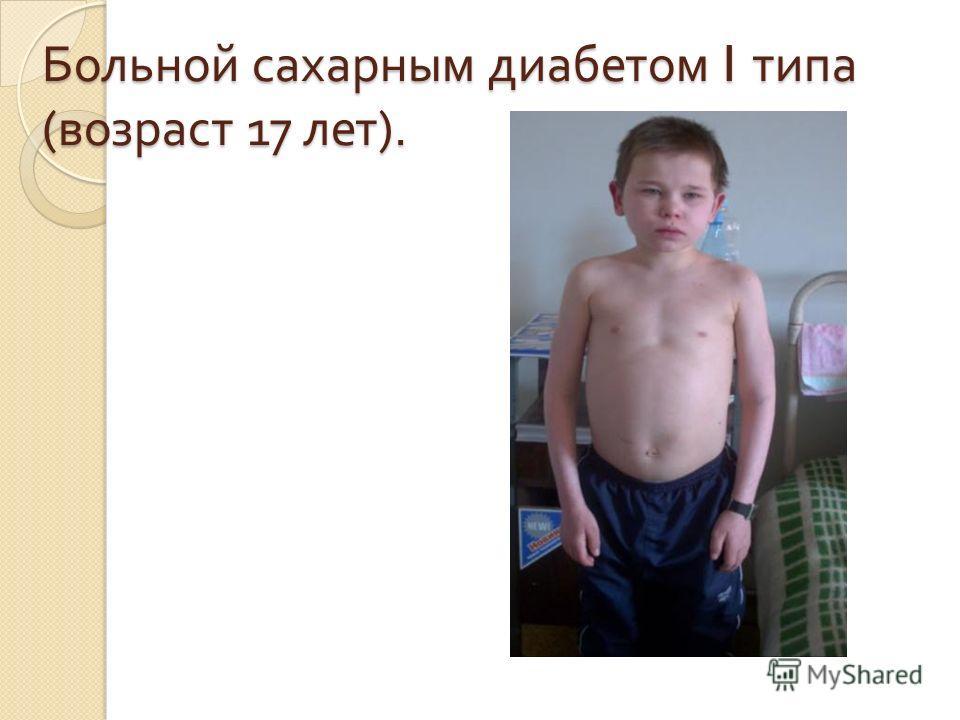 Больной сахарным диабетом I типа ( возраст 17 лет ).